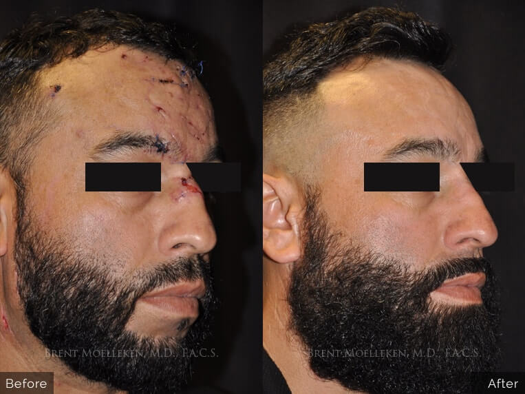 facial-scars-reconstruction-before-and-after-right-angel-patient-1-dr-brent-moelleken-1