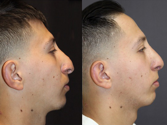 nose before and after 2