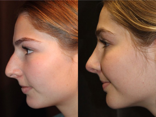 Rhinoplasty before and after 3