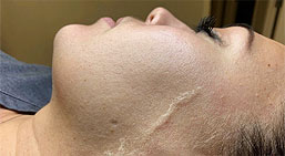 One free Glycolic Peel patent picture