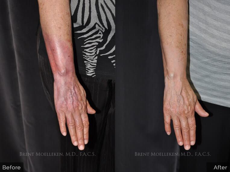 reconstructive surgery before and after back side patient 2 dr brent moelleken
