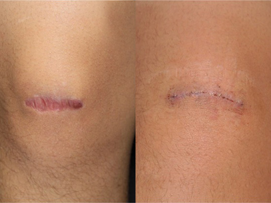 scar revision before and after 1