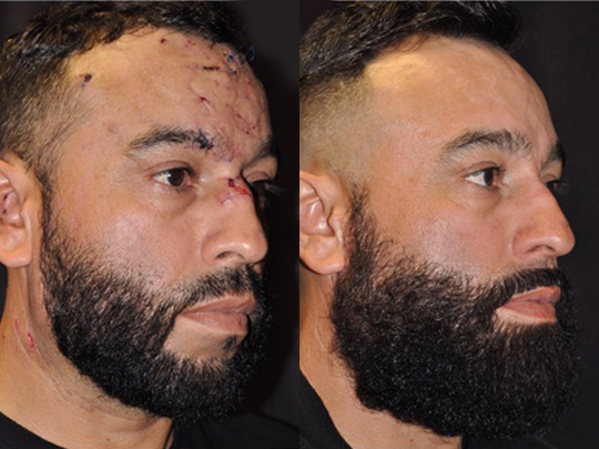 scar revision before and after 2b 1