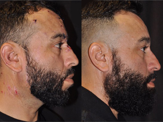 scar revision before and after 2c 1
